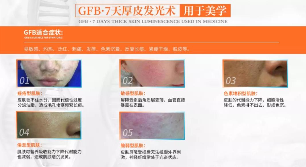 GFB厚皮发光术到底是什么?