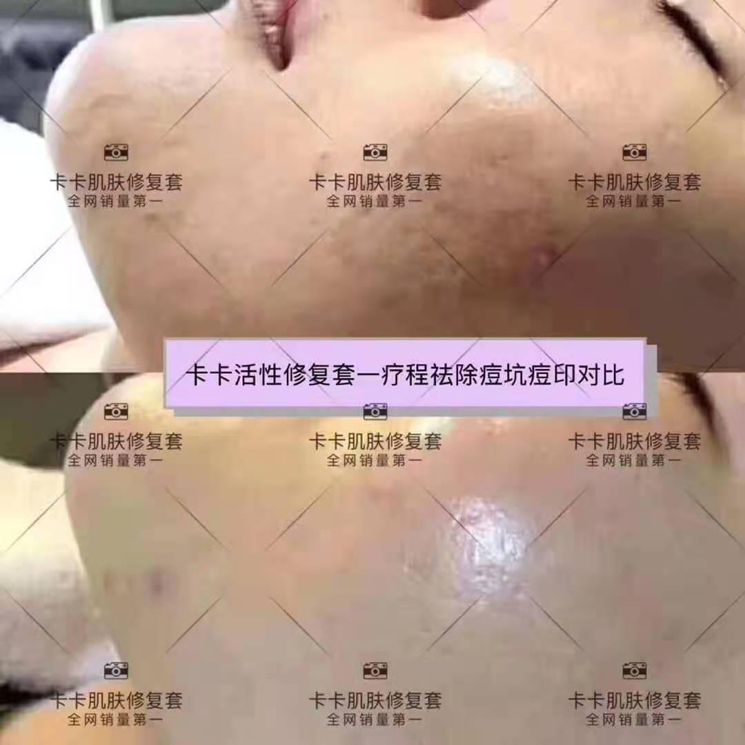 卡卡活性修复肌肤管理套